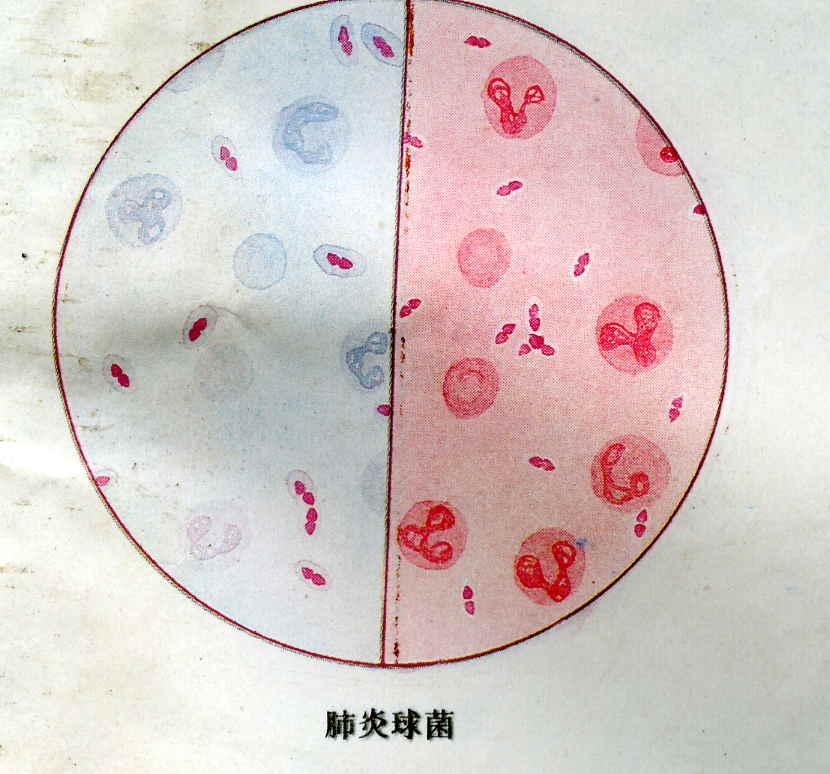 肺炎荚膜手绘图