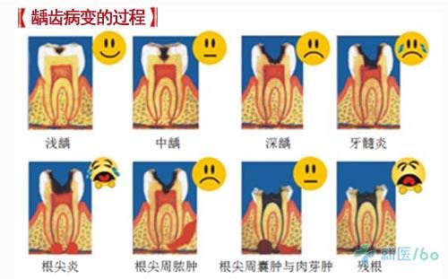 牙齿是所有动物身上最坚硬的结构
