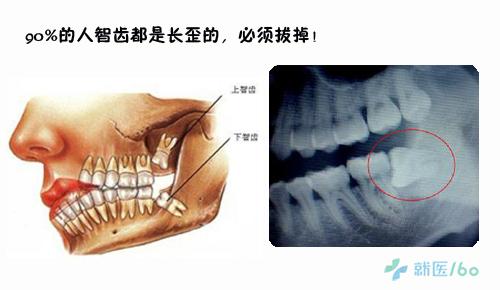 在智齿生长过程中,会出现比较严重的牙龈肿胀
