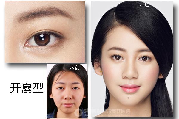 适合什么样的双眼皮?