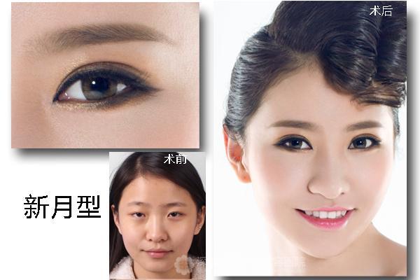 圆脸——新月型双眼皮更有神