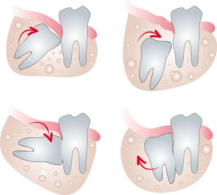 智齿常长得歪七扭八,因此常造成清洁牙齿的困难