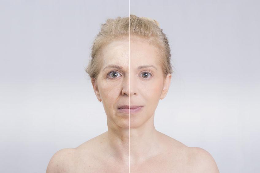 女脸部和颈部皱纹的数量